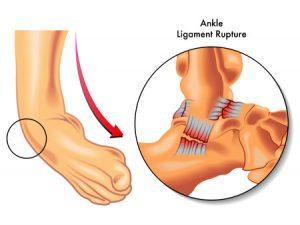 捻挫をした足首の靭帯が損傷しているイメージ図