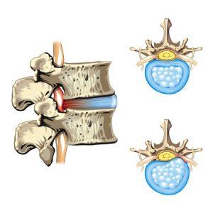 横浜の腰痛治療の整骨院「宮谷小交差点前せいこついん」の腰のヘルニアイメージ