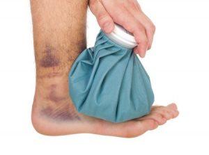 捻挫をした足首にアイシング治療をしている写真