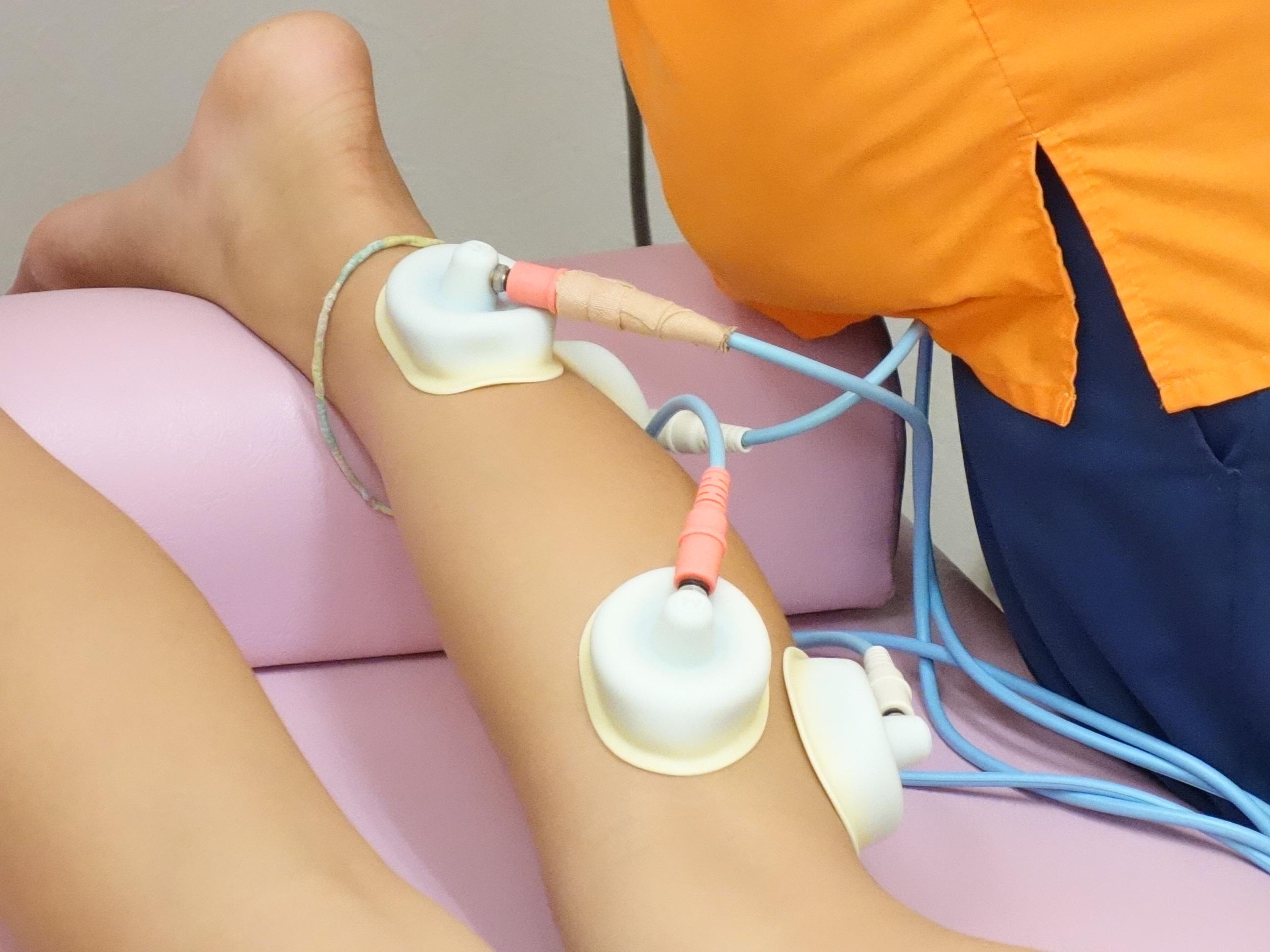 シンスプリントの電気治療をしている写真