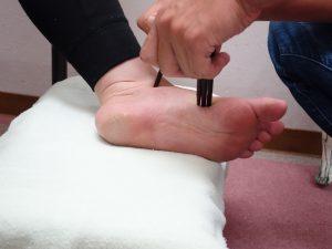 遠絡(えんらく)療法の足の押し棒治療の写真