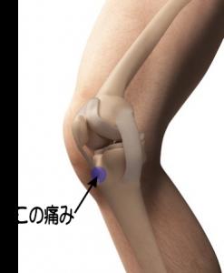 オスグット・成長痛の膝の前側の痛みが出やすい部分の写真