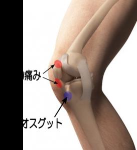 ジャンパー膝の膝が痛い部分のイラスト写真