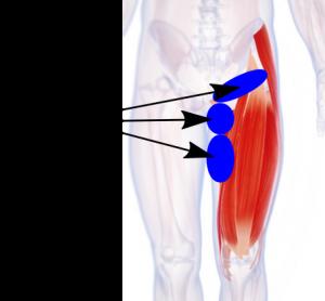 グロインペイン症候群の痛みが出やすい股関節、太もも、下腹部のイラスト