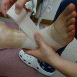横浜西区保土ヶ谷神奈川区近くの宮谷小交差点前整骨院の足首の捻挫のテーピング治療の写真