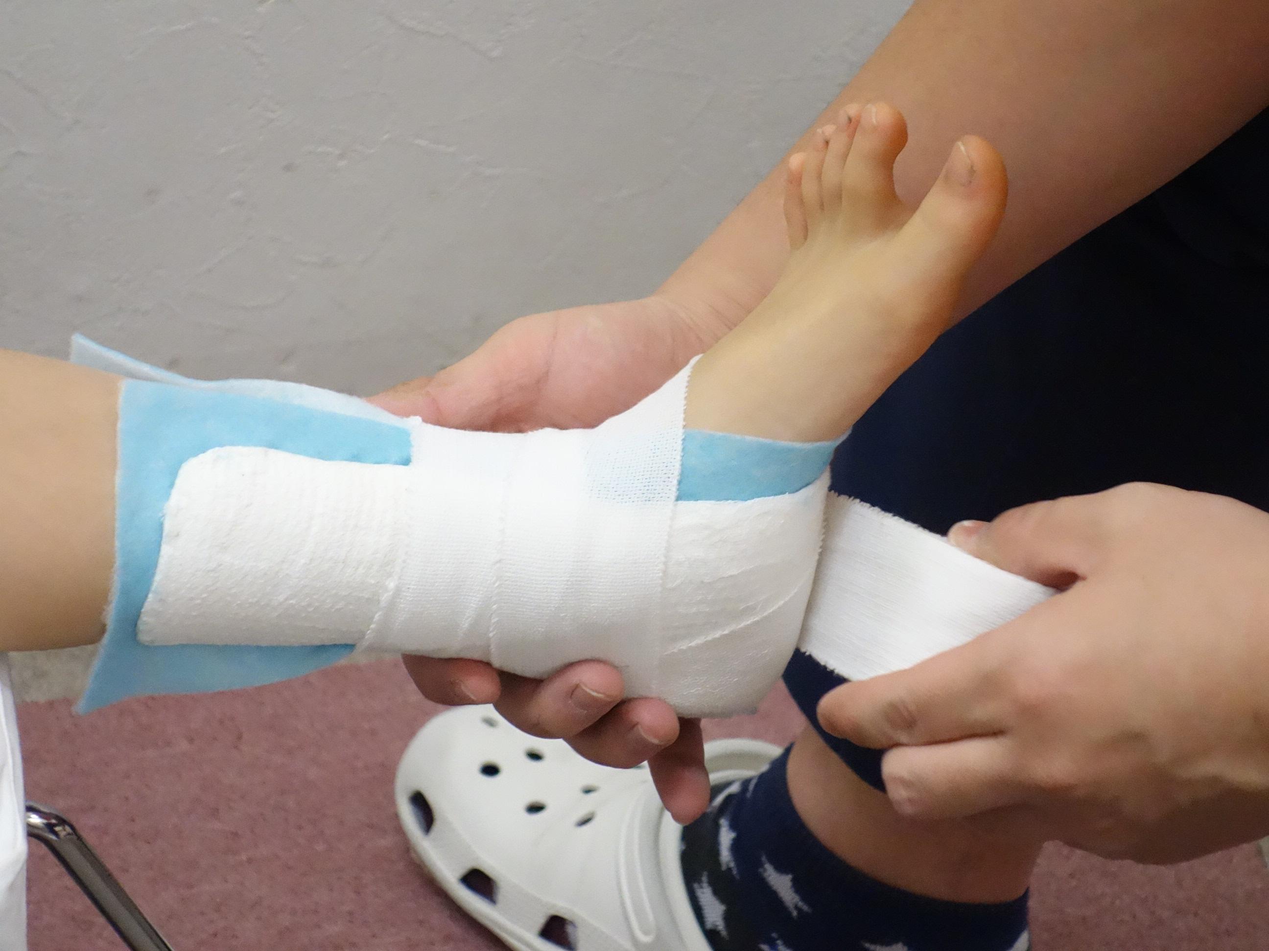 横浜の治療院で足首の捻挫の固定処置をしている写真