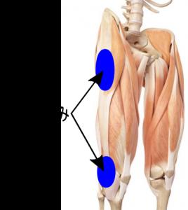 腸脛靭帯炎の膝や太もも外側が痛い部分のイラスト写真
