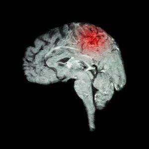遠絡治療の整骨院「宮谷小交差点前せいこついん」の脳の障害イメージ