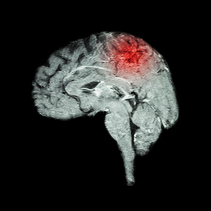 脳の障害のイメージ写真