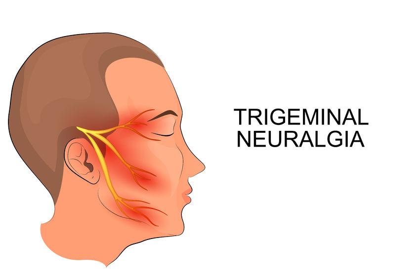 三叉神経痛のイラスト