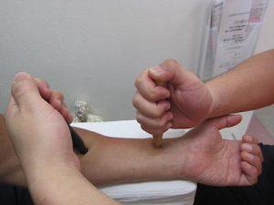 遠絡治療の整骨院「宮谷小交差点前せいこついん」の押し棒治療の写真