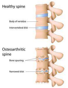 ぎっくり腰治療の整骨院「宮谷小交差点前せいこついん」の変形した椎間板イメージ