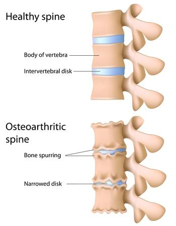 椎間板の変性しているイメージ写真