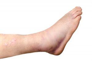 足首の捻挫治療の整骨院「宮谷小交差点前せいこついん」の捻挫した足首が腫れているイメージ