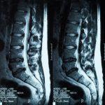 腰椎すべり症のレントゲン写真