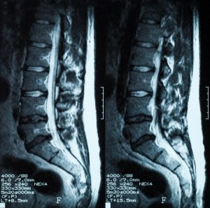 腰椎分離症治療の整骨院「宮谷小交差点前せいこついん」の椎間板が変形しているMRI写真イメージ