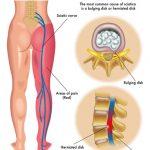 遠絡(えんらく)治療の整骨院の坐骨神経痛のページへ