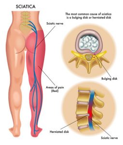 腰椎すべり症治療の整骨院「宮谷小交差点前せいこついん」の腰椎すべり症で坐骨神経痛の脚の痺れ等の症状が出るイラスト