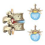 遠絡(えんらく)治療の整骨院の腰のヘルニアのページへ