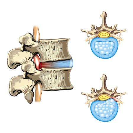 椎間板ヘルニアのイラスト図