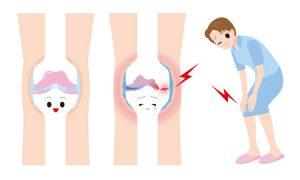 膝の痛み治療の整骨院「宮谷小交差点前せいこついん」の変形性膝関節症の膝の軟骨がすり減って膝が痛い女性のイラスト