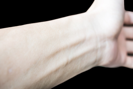 腱鞘炎の原因の腱