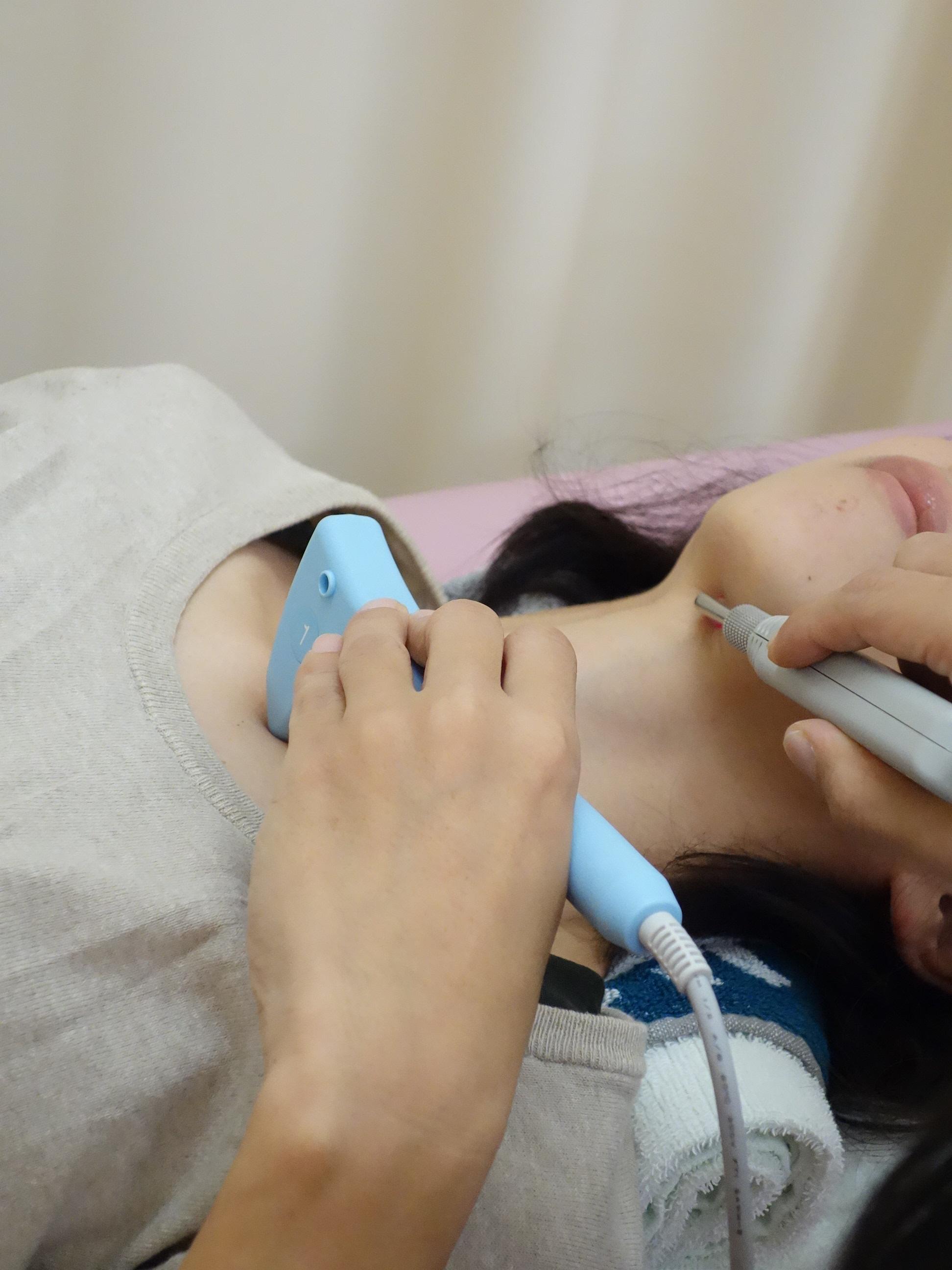 脊柱管狭窄症の遠絡(えんらく)療法の治療をしている女性