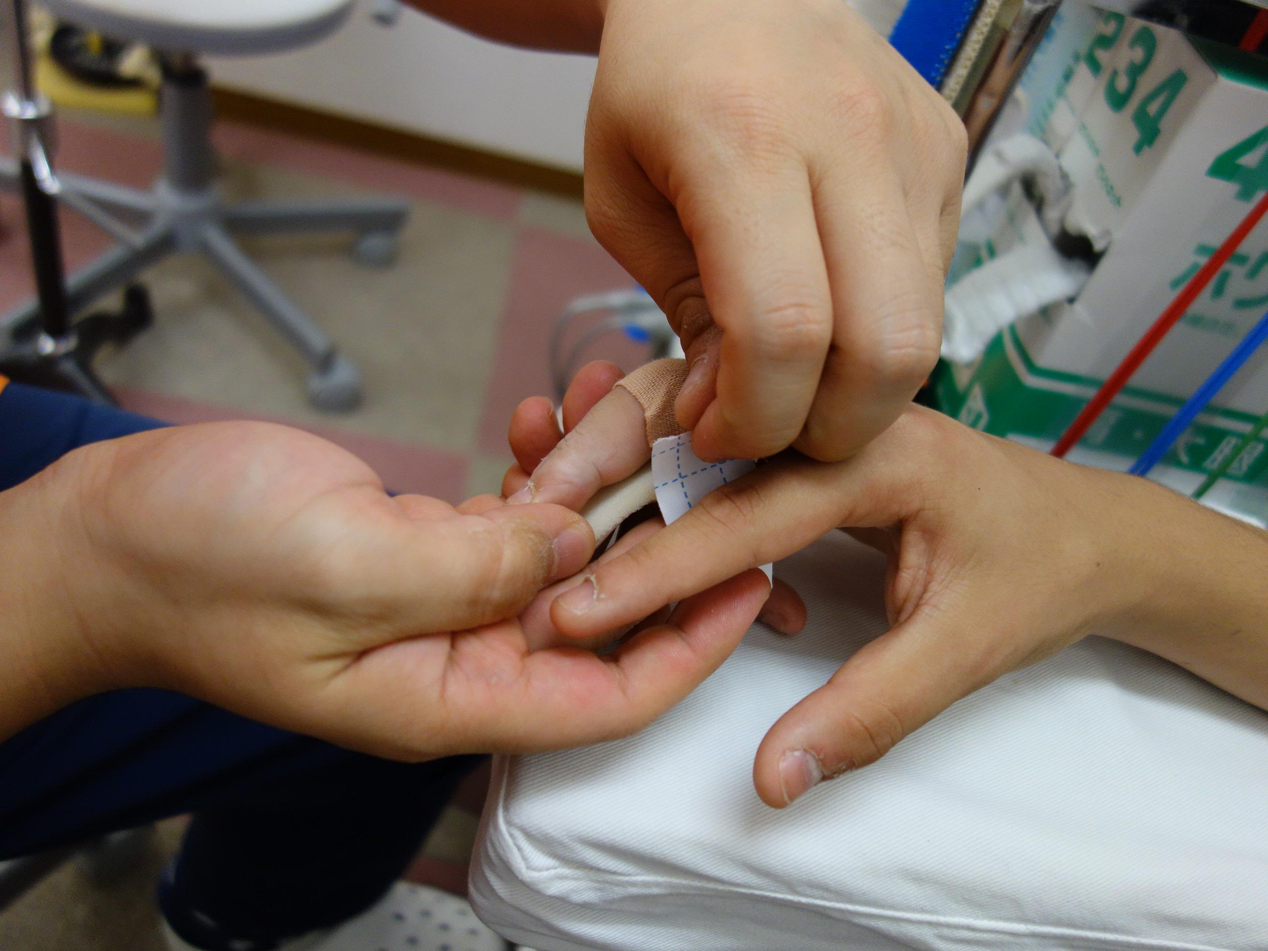 つき指の固定の治療をしている写真