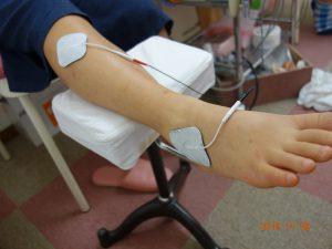 足首の捻挫治療の整骨院「宮谷小交差点前せいこついん」の捻挫した足首を電気治療するイメージ