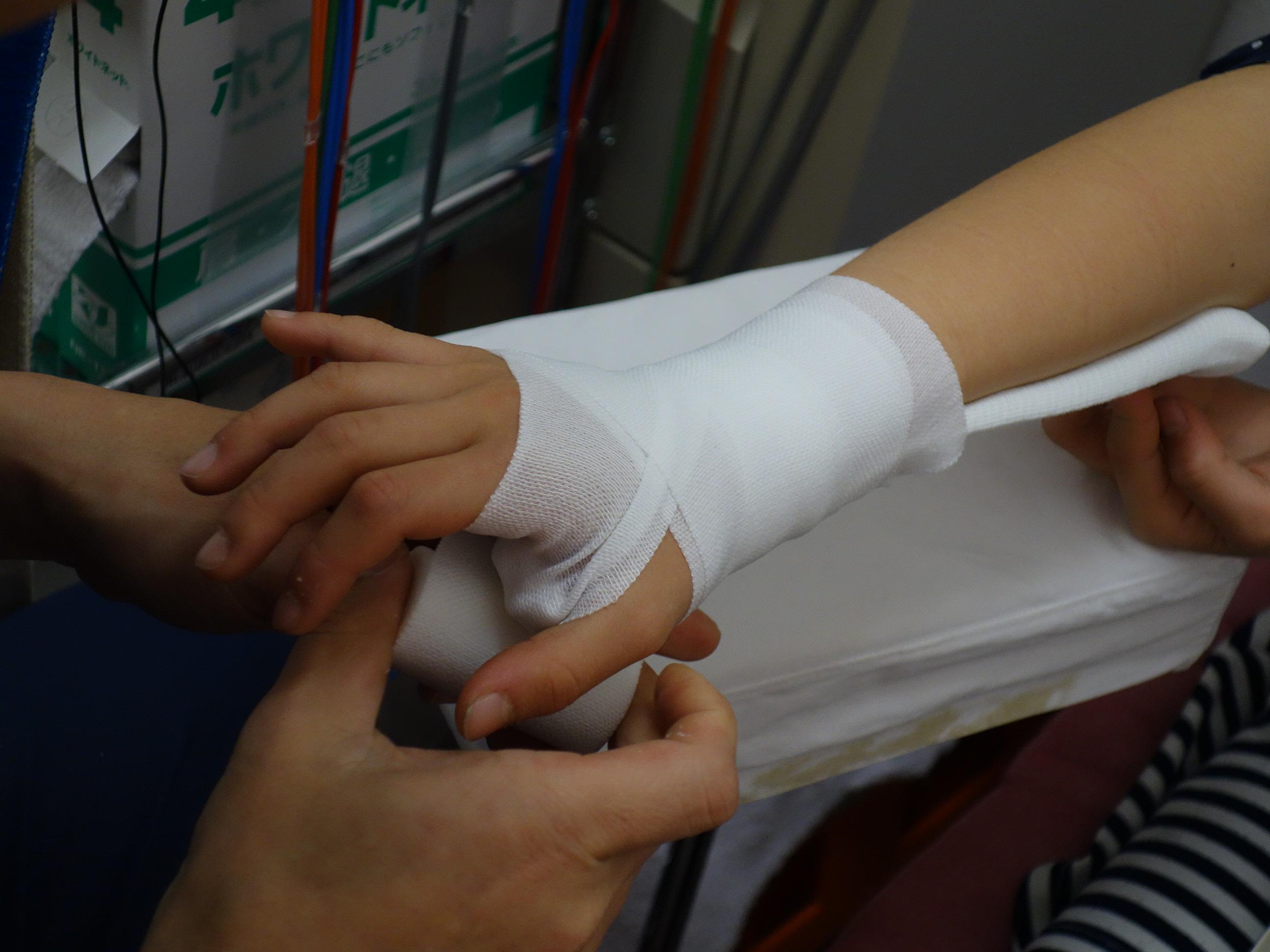 手首の捻挫の包帯固定