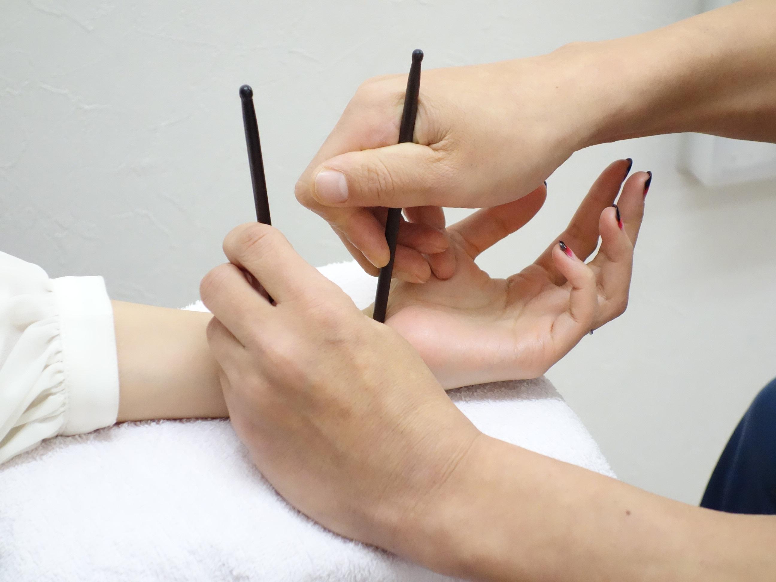 ぎっくり腰の遠絡(えんらく)療法で治療している女性の写真