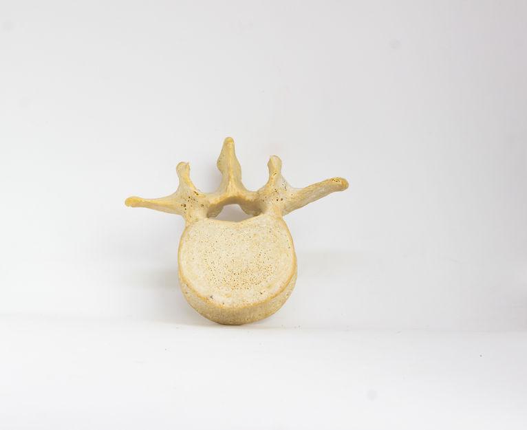 脊柱管狭窄症の原因の椎孔のイメージ