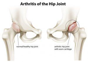 股関節の痛み治療の整骨院「宮谷小交差点前せいこついん」の股関節のイラスト