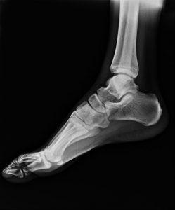 膝の痛み治療の整骨院「宮谷小交差点前せいこついん」の足関節のレントゲン写真