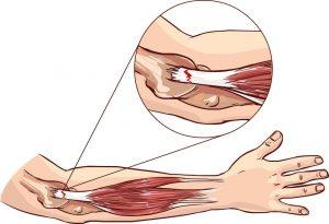テニス肘・ゴルフ肘治療の整骨院「宮谷小交差点前せいこついん」のテニス肘のイラスト