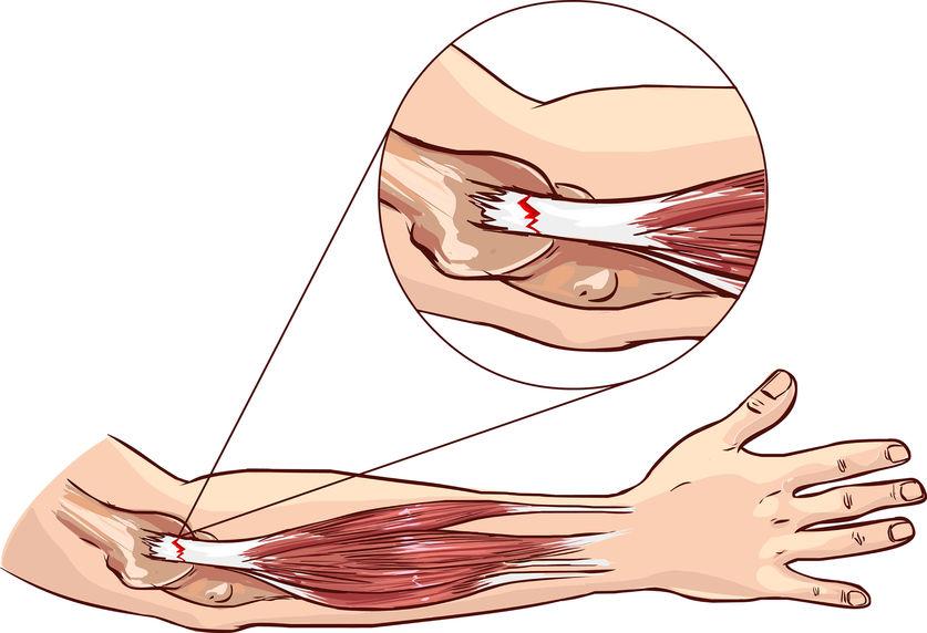 肘が痛いテニス肘のイラスト