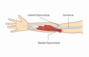 テニス肘・ゴルフ肘治療の整骨院「宮谷小交差点前せいこついん」のゴルフ肘のイラスト