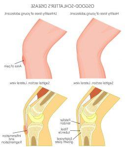 膝の痛み治療の整骨院「宮谷小交差点前せいこついん」の膝が痛いオスグットのイメージ