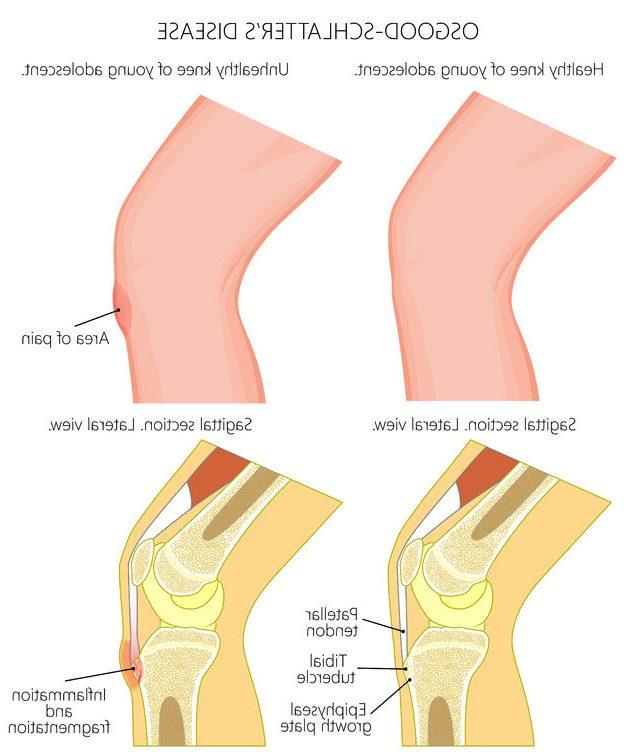 膝が痛いオスグットのイメージ写真