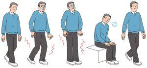 脊柱管狭窄症治療の整骨院「宮谷小交差点前せいこついん」の脊柱管狭窄症で腰と足が痛く歩くのが困難なイラスト