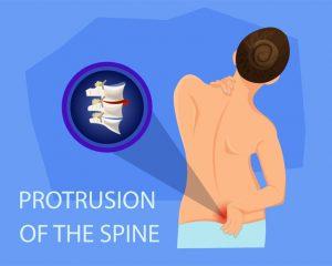 腰のヘルニア治療の整骨院「宮谷小交差点前せいこついん」の腰のヘルニアイメージ