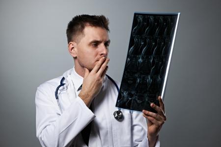 レントゲン写真を見て頭痛の原因が分からない医師の写真