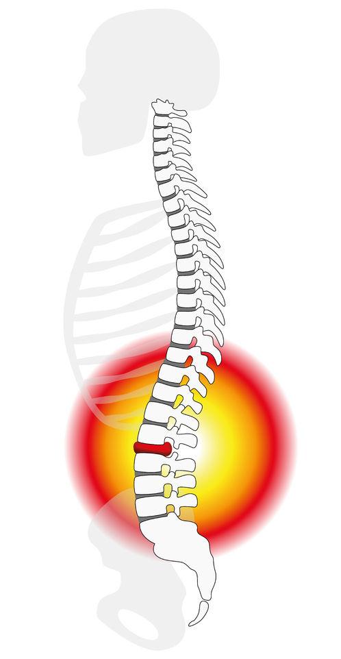 腰痛の人の炎症のイメージ