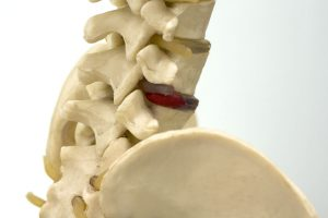 腰のヘルニア治療の整骨院「宮谷小交差点前せいこついん」の椎間板模型