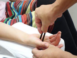 頭痛・片頭痛(偏頭痛)治療の整骨院「宮谷小交差点前せいこついん」の頭痛の遠絡(えんらく)療法の押し棒治療イメージ
