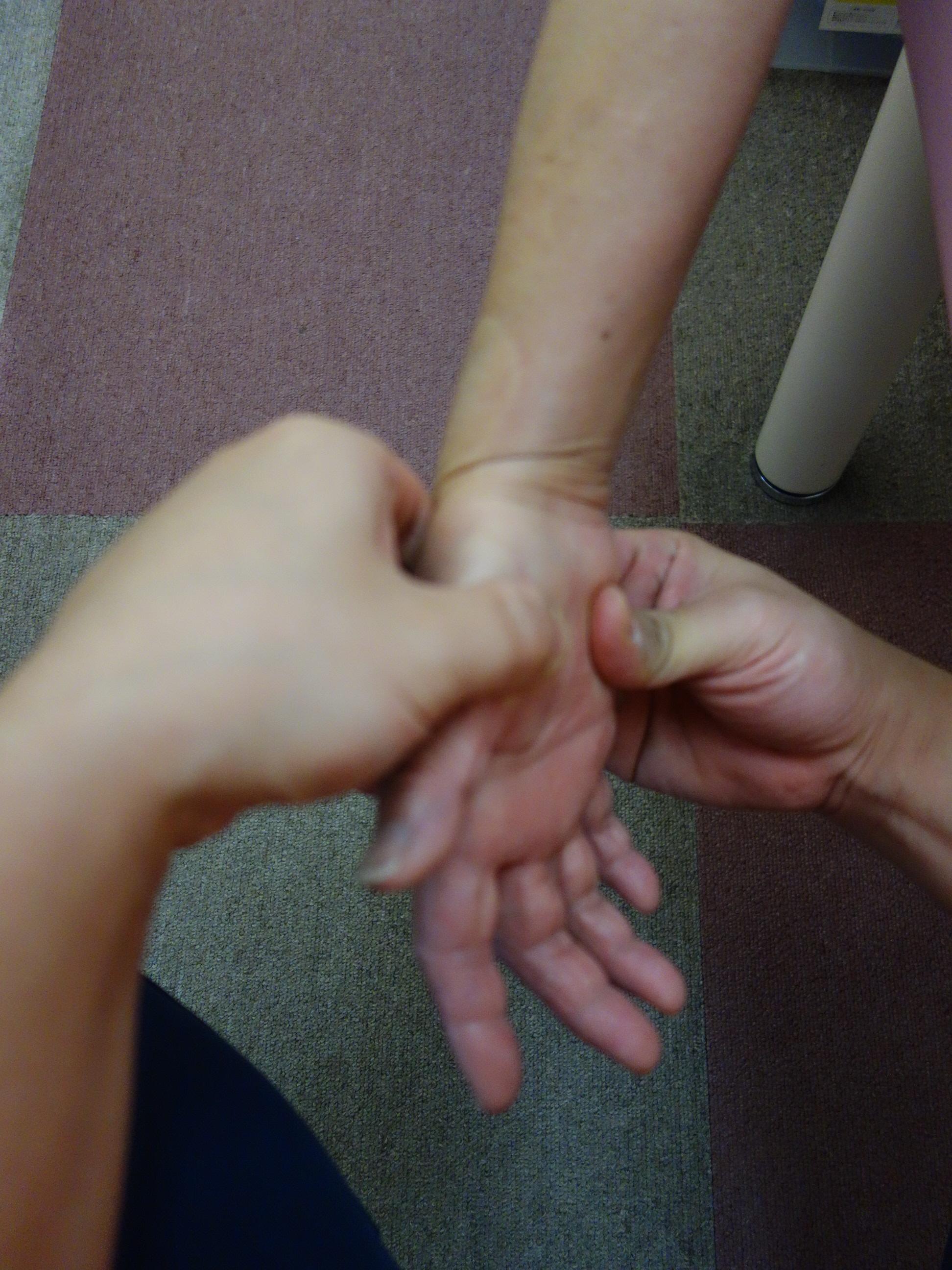 ばね指の横浜西区の治療院でマッサージ治療をしている写真