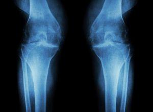変形性膝関節症治療の整骨院「宮谷小交差点前せいこついん」の変形性膝関節症の膝が痛い人のレントゲン写真