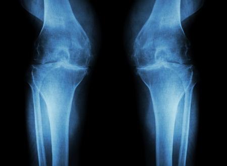 変形性膝関節症で膝が痛い人のレントゲン写真